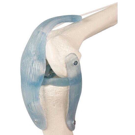 Erler Zimmer® Kniegelenk mit Bändern
