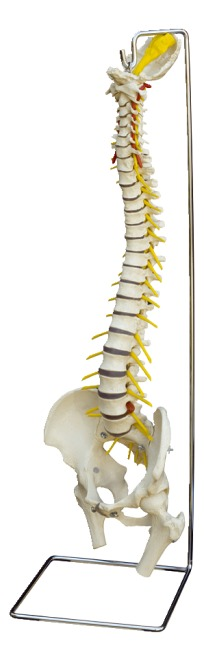 Wirbelsäule mit Bandscheibenvorfall / Anatomisches Modell kaufen ...